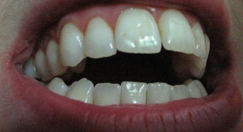 تفتح الزجاجات والأكياس بأسنانك؟ إذًا إحذر هذه الأضرار!