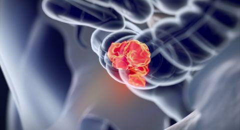 سرطان القولون غالبا ما يحدث متأخرا عند الشباب