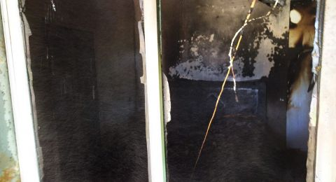 إصابة خطيرة لشابة اثر حريق هائل في منزلها بتل السبع