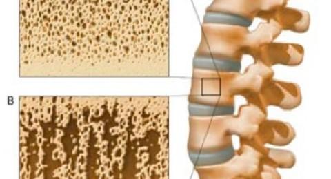 استهلاك البروتينات مفيد للعظام