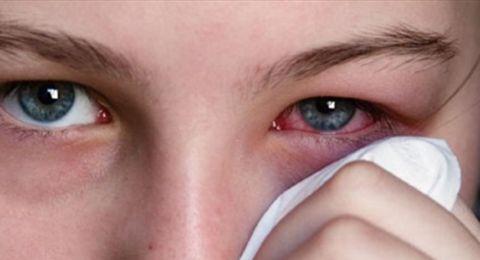التهاب العيون وطرق الوقاية