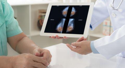إسرائيل: (5400) إصابة جديدة بسرطان الثدي – سنوياً