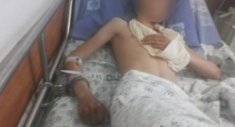 جمعية حقوق المواطن وأطباء لحقوق الانسان يطالبان بفتح تحقيق فوري في اصابة الطفل عبدالله عناتي ومنع الاسعاف من نقله للمستشفى