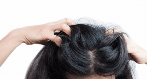 هل يمكن أن تسبب قشرة الرأس تساقط الشعر؟