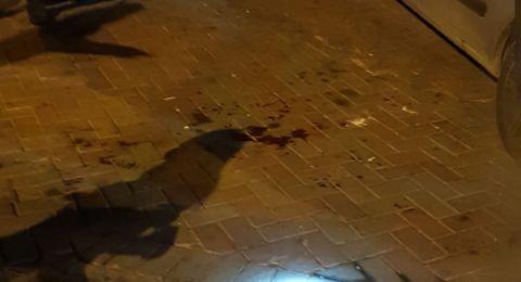 ام الفحم: وما زال اطلاق النار مستمرا...اصابة خطيرة