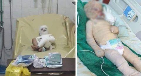 الطفلة مايا تحررت من وجعها.. وفارقت الحياة