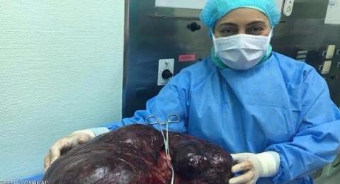 إزالة ورم يتجاوز 17 كيلوغراماً من بطن امرأة إماراتية