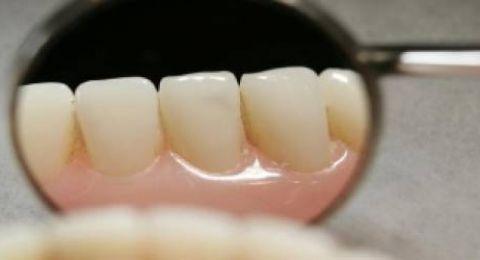 نصائح للتخفيف من حدة التورم بعد جراحة الأسنان
