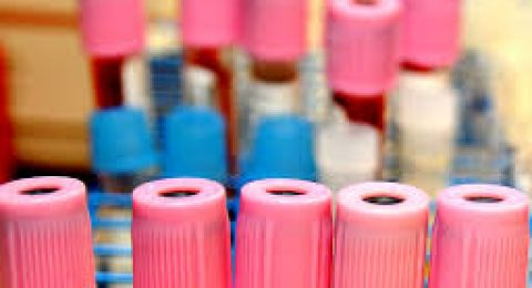 مختبر جاهز لفحوص الكورونا، معطل بسبب الإجراءات البيروقراطية!