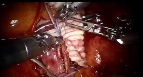 طبيب من أصل سوري ينجح بجراحة هي الأولى من نوعها في العالم