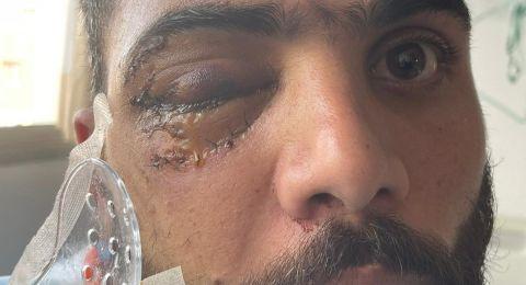 مركز مساواة يحمّل الشرطة كامل المسؤولية عن إقتلاع عين احمد دياب