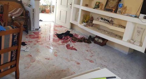 شفاعمرو: اصابة شخص (43 عامًا) بعيار ناريّ