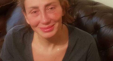في تصريح صادم.. ريهام سعيد: أزلت أنفي بالكامل في عملية جراحية