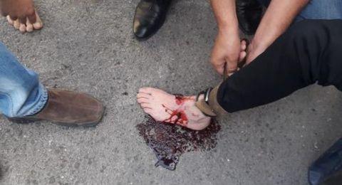 إصابة رجل بإطلاق نار في كفر كنا