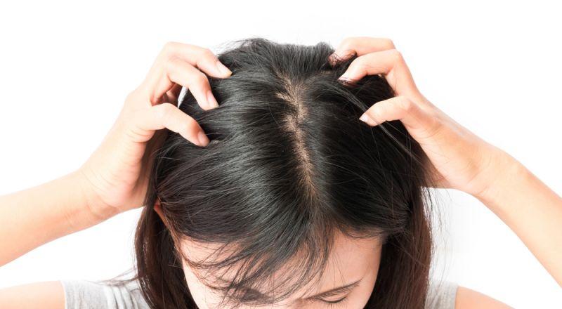 خلطات منزلية للتصدي للقشرة وحماية فروة الرأس