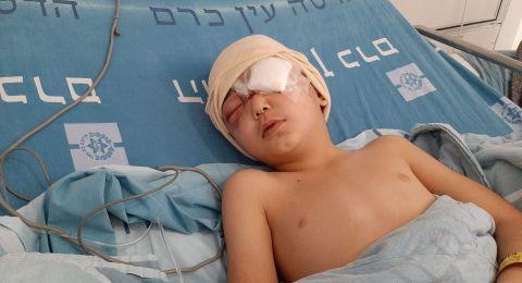 الطفل مالك فقد بصره في العين اليسرى ومواطنان شهدا في