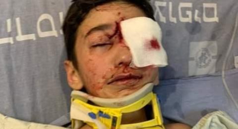 فتح تحقيق ضد ضابط اسرائيلي أصاب طفلًا من العيسوية
