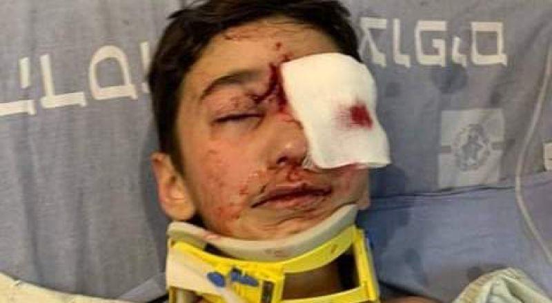إصابة طفل من العيسوية، في وجهه برصاصة إسفنج أطلقتها الشرطة