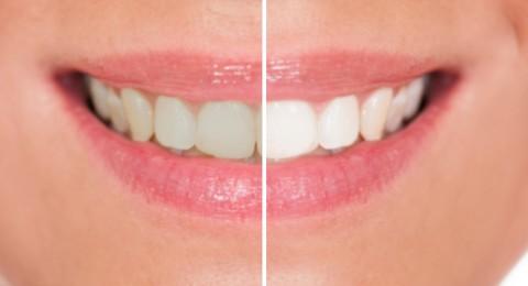 ما هي مخاطر تبييض الأسنان بالليرز