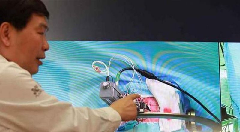ثورة في عالم الجراحة: أجرى له عملية دقيقة على بعد 3 آلاف كيلومتر.. بفضل 5G!