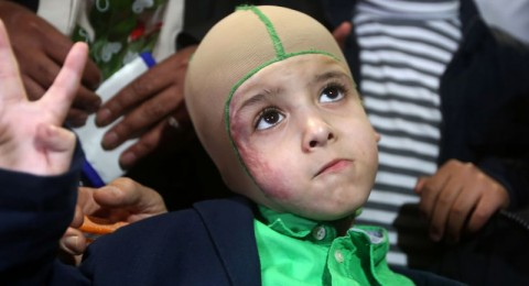 الطفل أحمد دوابشه يغادر مستشفى شيبا ويعود إلى بيته