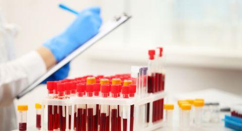 اختبار دم جديد يتنبأ بالوفاة خلال 10 أعوام!