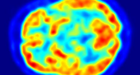 اكشاف غامض حول الدماغ البشري.. العلماء في حيرة!