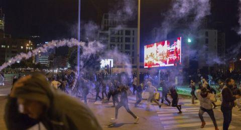ممثل أصيب برصاص مطاطي في اشتباكات وسط بيروت.. وهذا وضعه الصحي