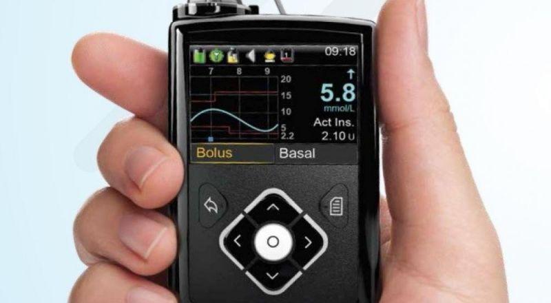بنكرياس اصطناعي لمرضى السكري