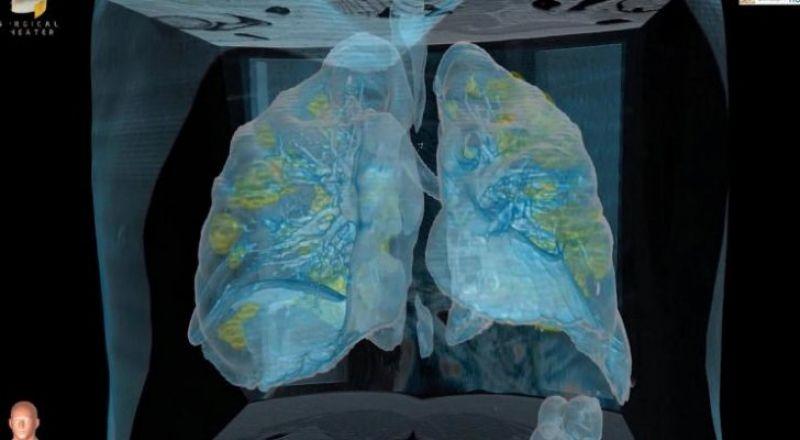كيف تبدو رئة مصاب بفيروس كورونا وما يحصل داخلها