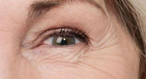 الكشف عن معنى تجاعيد العينين.. اليكِ التفاصيل