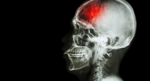 تأكيد أهمية معرفة العلامات التحذيرية للجلطة الدماغية