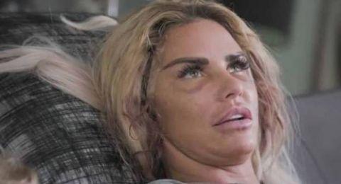 بعد تشوه وجهها.. عارضة الأزياء الشهيرة تواجه الإفلاس