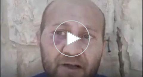 شاهدوا: اعتداء وحشي من مستوطنين  على مقدسي مع إعاقة