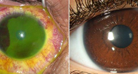 الخبراء يحذرون من أن معقمات اليد قد تؤدي إلى إصابات شديدة في العين لدى الأطفال