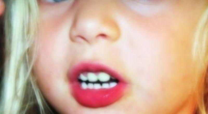 كيف تعرف أن طفلك مصاب بتأخر وعسر في النطق؟
