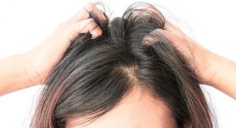 اكتشفي أسباب حكة الشعر