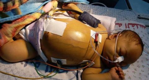 وفاة طفل رضيع بغزة بعد رفض