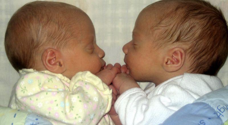 ولادة توأم الفارق بينهما 10 سنوات