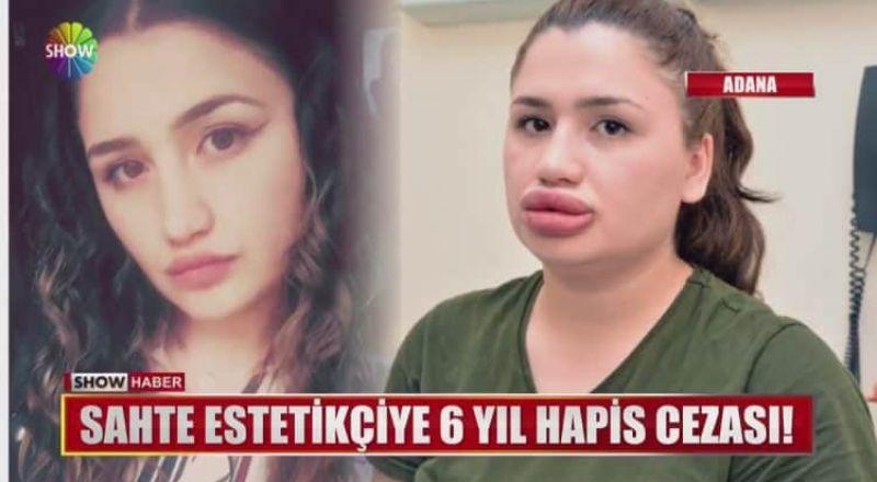 فتاة تركية أرادت نفخ شفتيها فكانت النتيجة كارثية